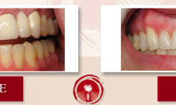 Tooth Whitening, Porcelain Fixed Bridges, Cosmetic Gum