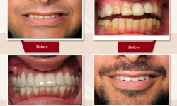 26 Crowns and 2 dental implants