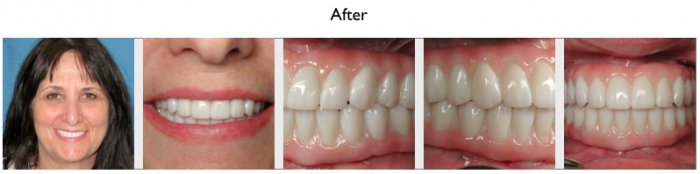 Prettau Dental Implants-After