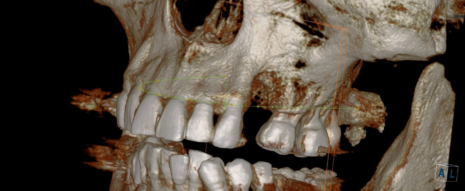 3d scan --before block bone graft