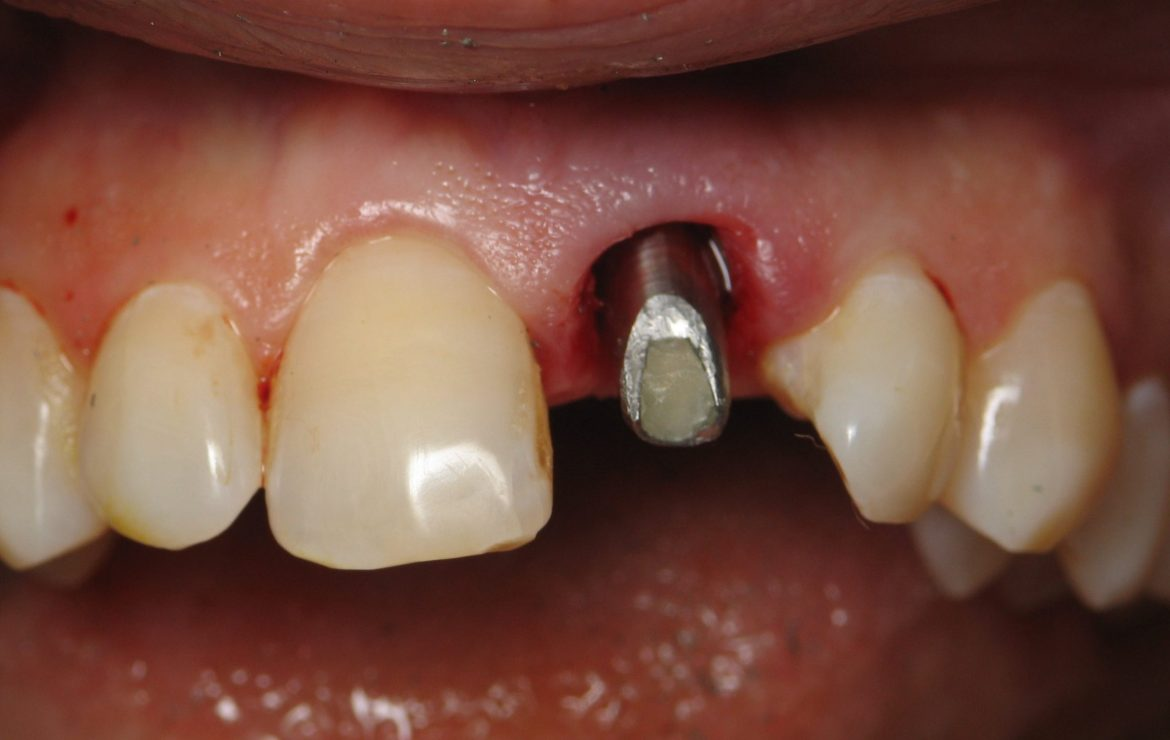 Immediate Front Tooth Dental Implant Example -(Difficult Case)