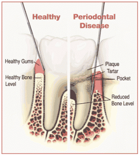 Pockets Around Dental Implants