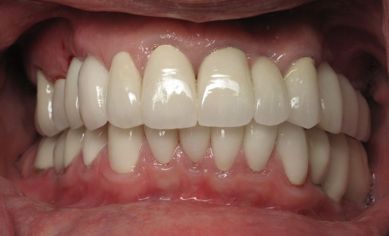 Full Mouth Dental Implant Reconstruction -Audio Explanation With Burbank's Ramsey Amin, DDS