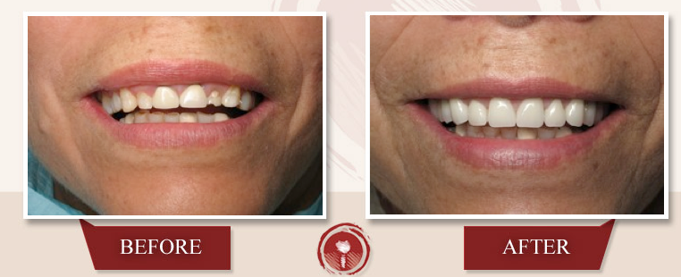 Cosmetic Gum Treatments: Crown Lengthening