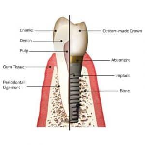 dental-implant-square