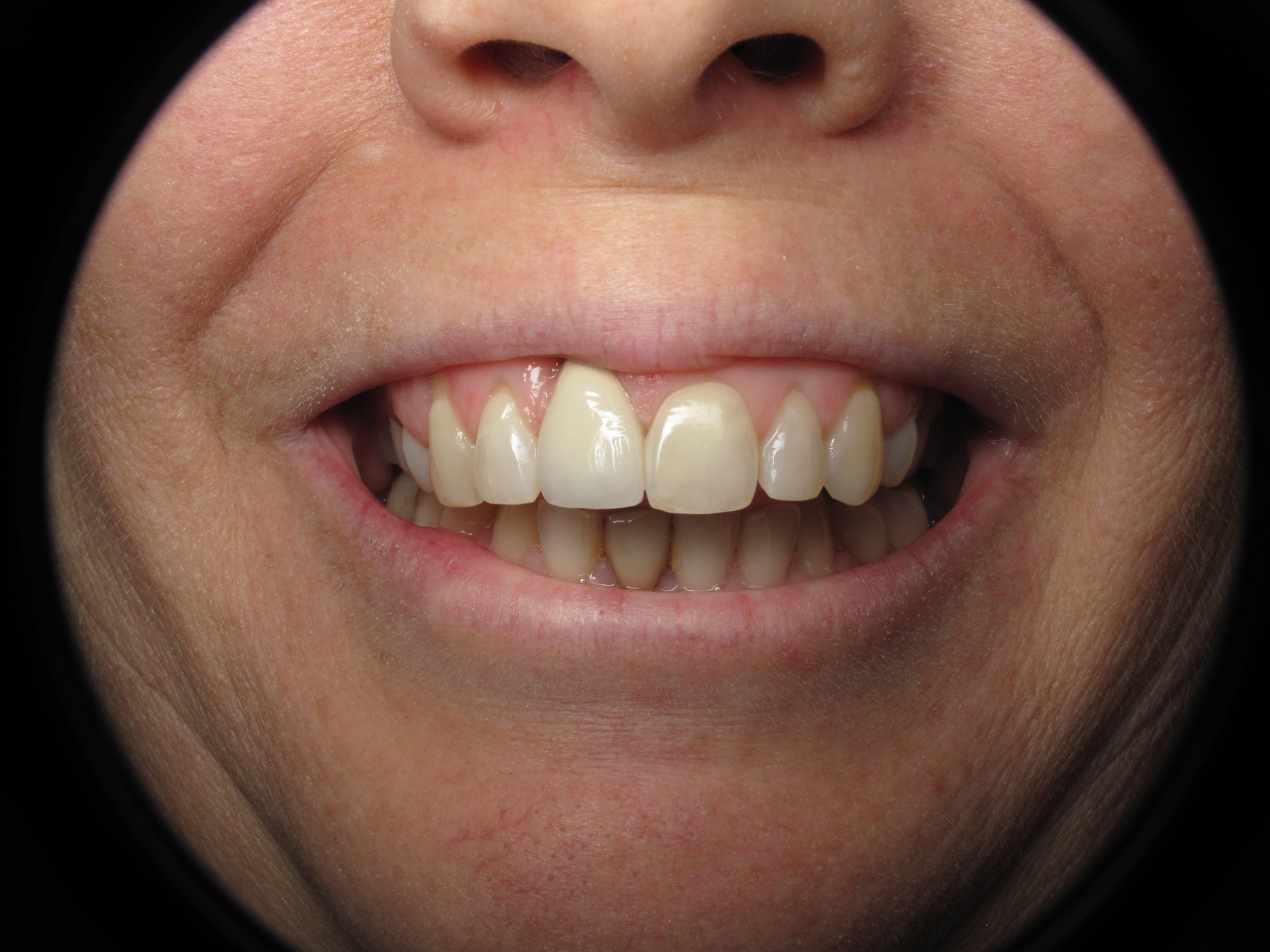 Alfa img - Showing > Front Denture Teeth Too Short