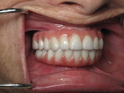 Fixed Dental Implants Steps To Replace All Teeth