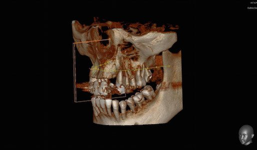 After Extraction and Bone Graft…The Bone is Showing. Now What? Ramsey Amin, DDS Reviews Options