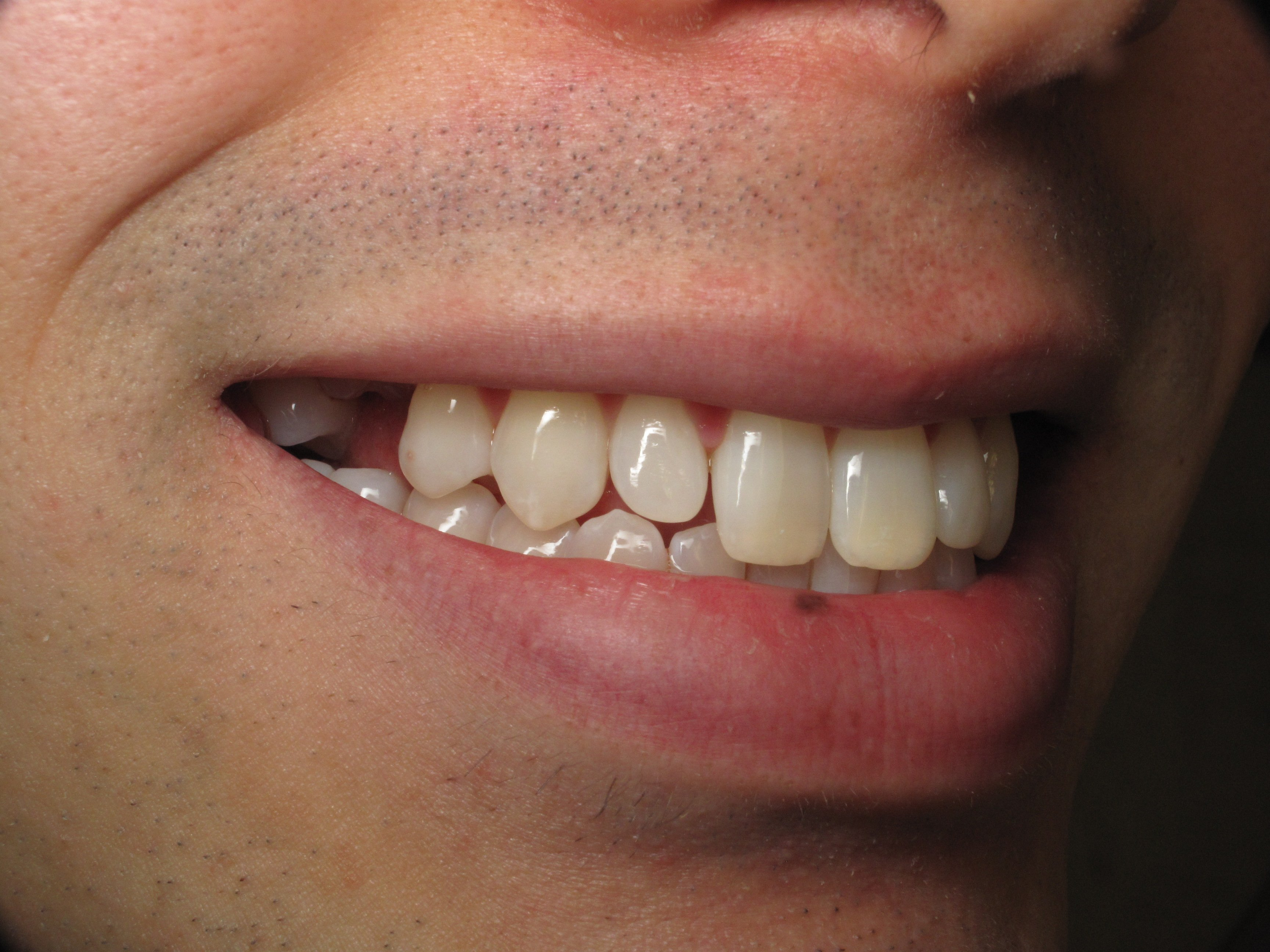 Wisdom Teeth Extraction  Coronectomy With Simultaneous Baby Tooth Dental Implant Replacement