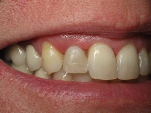 2 months with dental implant temporary