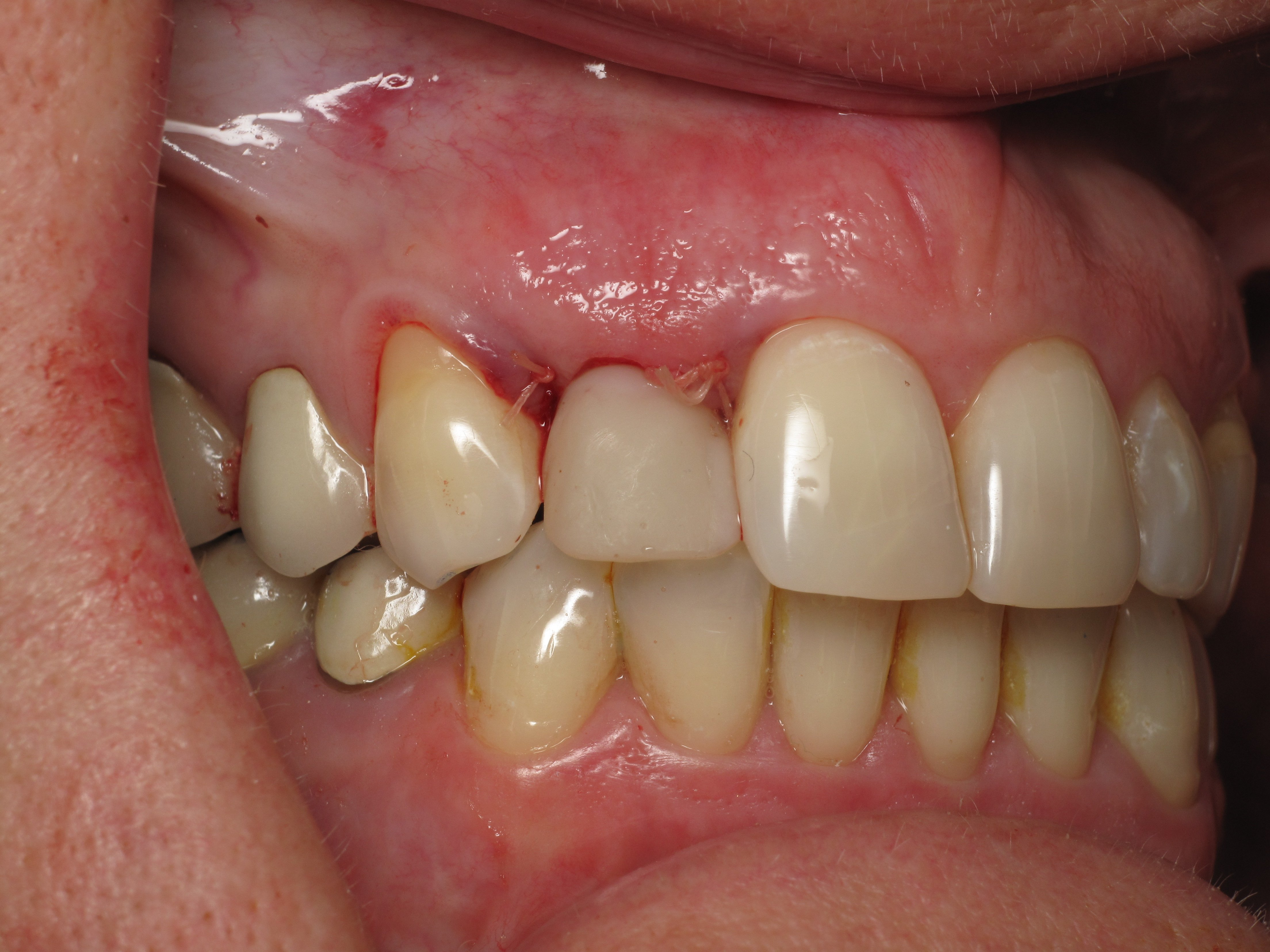 Shaping And Forming Gum Around Front Teeth Dental Implants