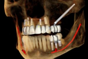 Are Zygomatic and Pterygoid Dental Implants Near the Eye?
