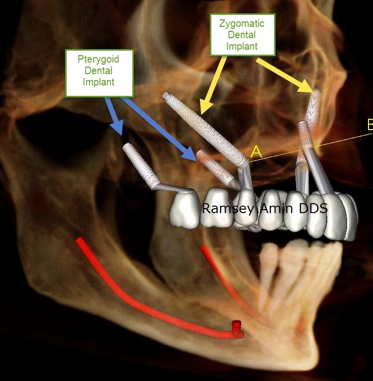 What is a Pterygoid Dental Implant?
