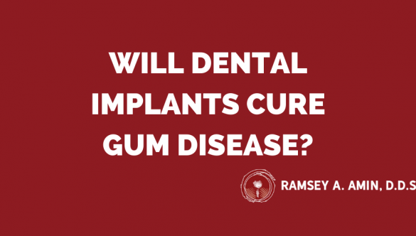 Will Dental Implants Cure Gum Disease? Video