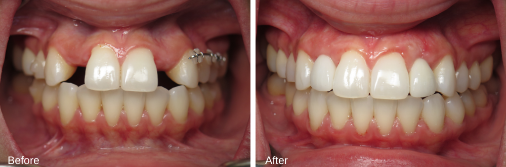 Lateral Incisor implants and bone and grafting