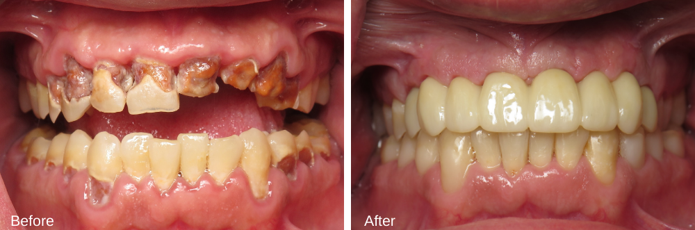 Burbank-Dental-Implants-Before-After-Multiple-Implants-1